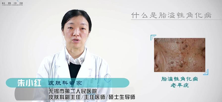 【秒懂百科】什么是脂溢性角化病?
